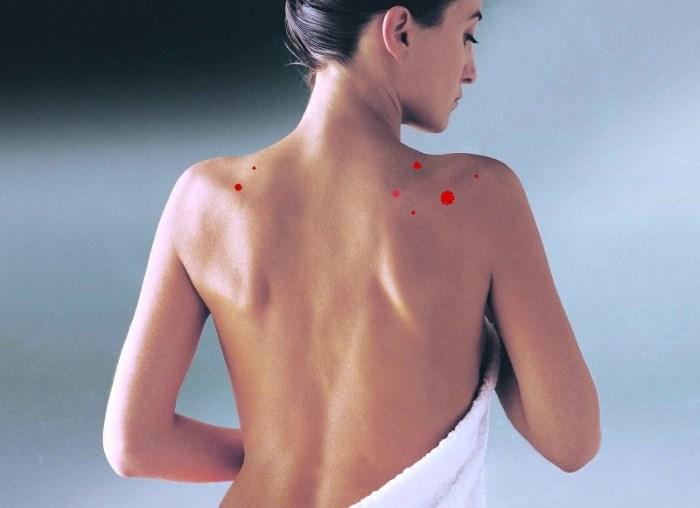 Эффективное лечение угревой сыпи на спине