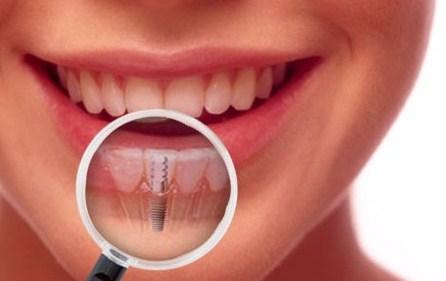 Имплантация зубов – процедура здоровья, красоты и престижа