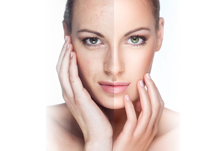 Омоложение кожи с помощью пилинга