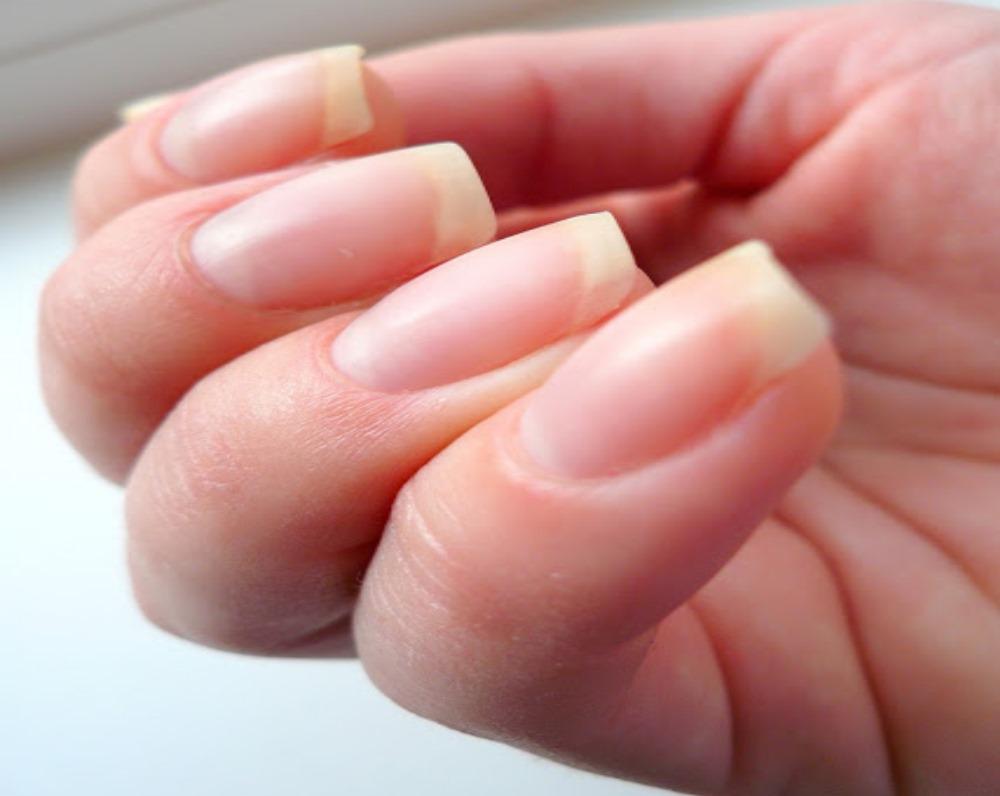 Причины появления белых пятен на ногтях