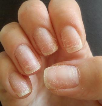 Грибок ногтей — деликатная проблема и решительные действия