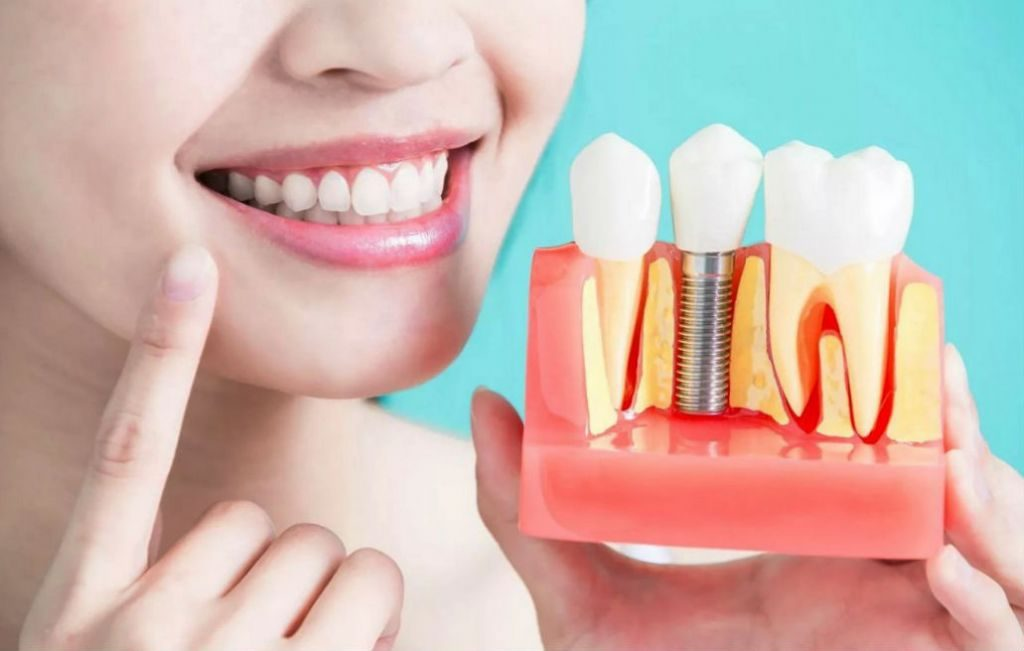 протезирование зубов Позняки Киев цена