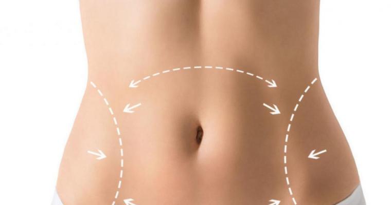 Абдоминопластика — пластика после беременности