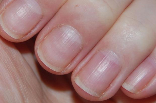 Как определить здоровье человека по его ногтям?