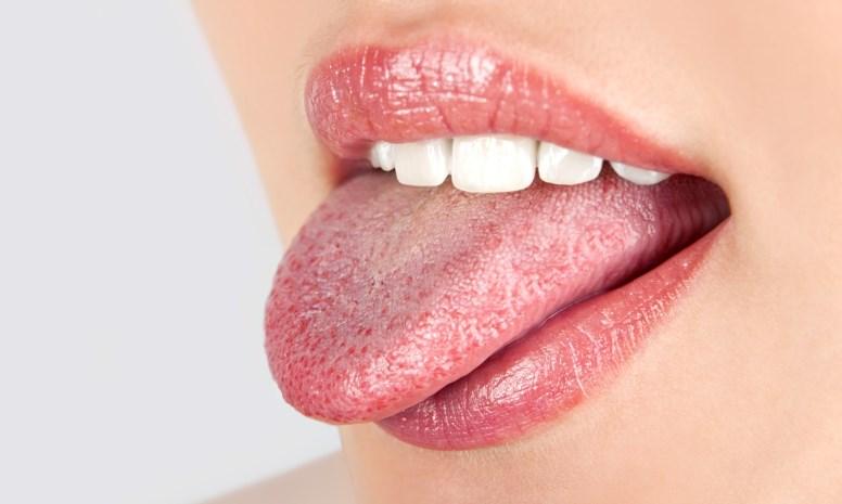 Налет на языке — виды налета, причины, как чистить язык