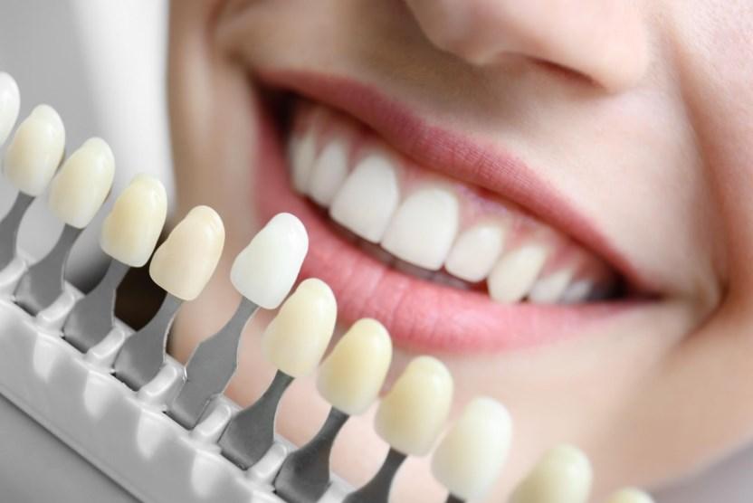 Какие бывают виниры на зубы