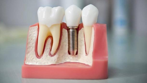 Плюсы современной имплантации зубов