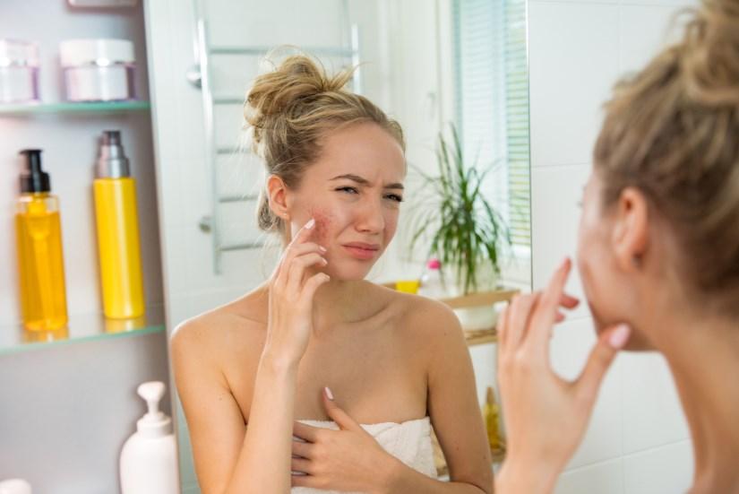 Как убрать покраснение на лице быстро