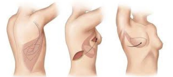 Подтяжка груди — медицинская коррекция косметических проблем