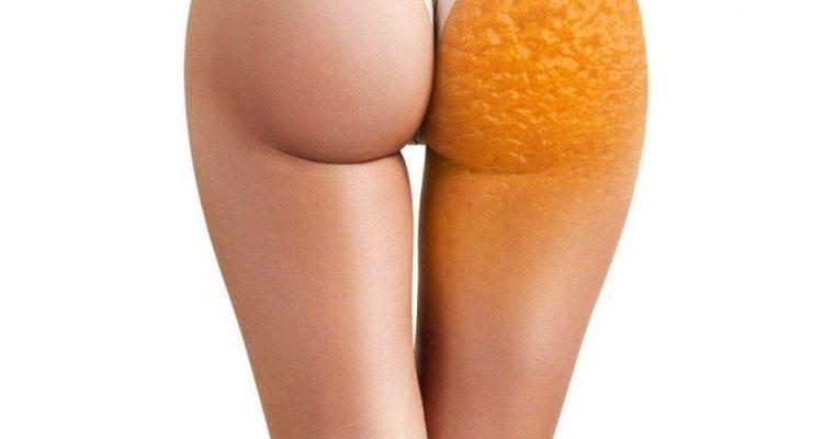 Топ-5 ошибок при борьбе с целлюлитом, или почему одолеть «апельсиновую корку» не получается