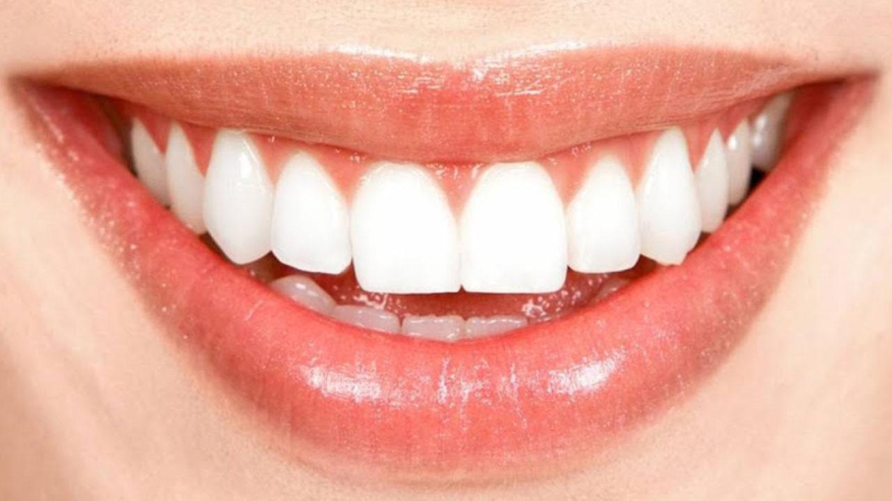 DentArt – эффективные виды отбеливания зубов