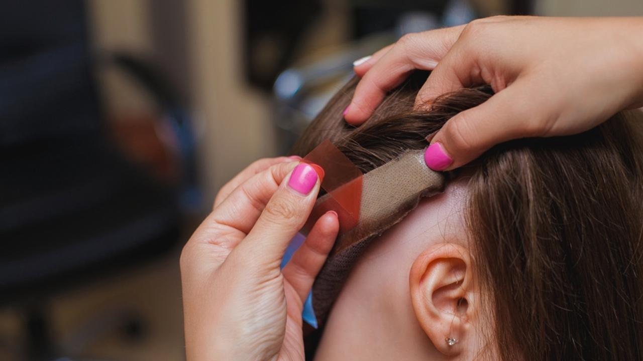 Система замещения волос против парика. Что выбрать?