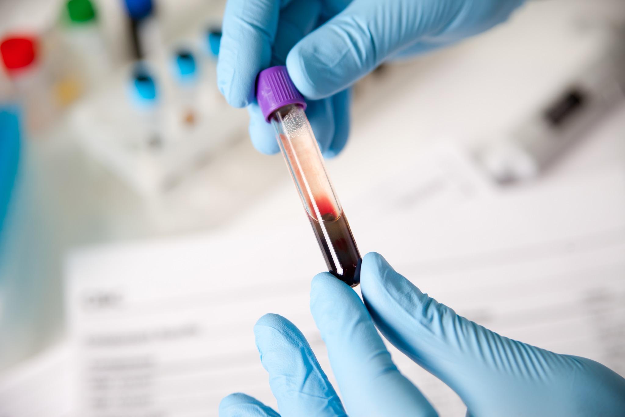 Когда требуется проведение общего анализа крови?