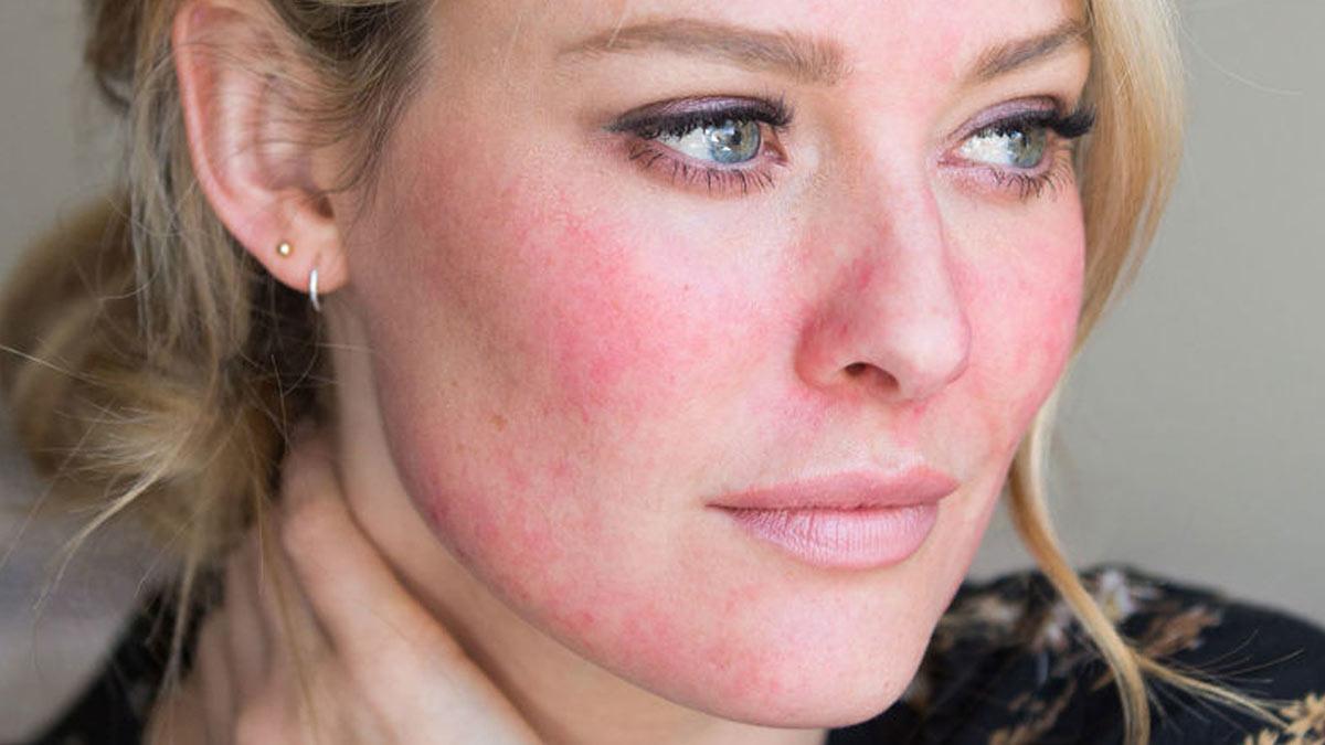 Несколько правил ухода за кожей зимой